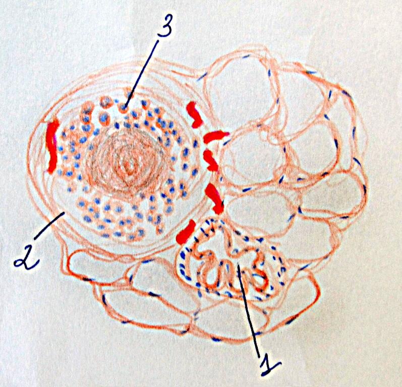 Патоморфологія інфекційних захворювань