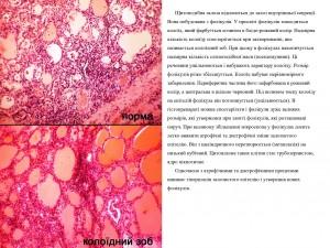 Колоїдна дистрофія щитоподібної залози