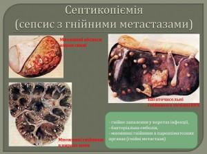 Септикопіємія