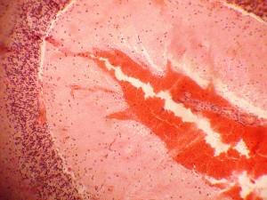 Крововиливи у мозку. Фарбування гематоксиліном та еозином.