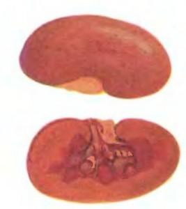 Крововиливи в нирках