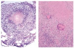 Туберкульозна гранульома