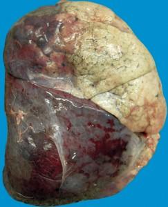Крупозна  пневмонія